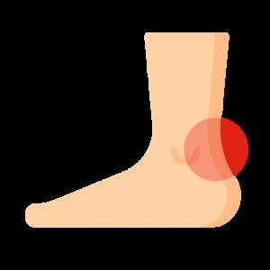 Achillessene smerter